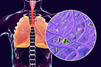 Tusea convulsivă și importanța vaccinării