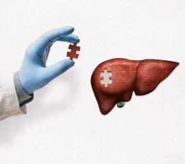 Encefalopatia-hepatică-dezvoltată-pe-fondul-cirozei-hepatice