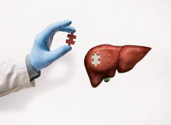 Encefalopatia hepatică dezvoltată pe fondul cirozei hepatice