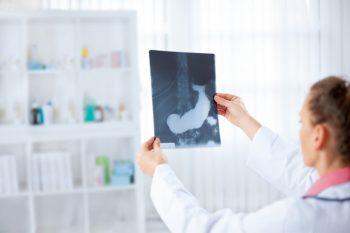 Cancer pancreatic – noi tratamente testate cu ajutorul organoizilor